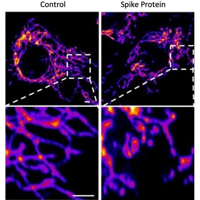 Studim/ Covid-19 është sëmundje vaskulare, jo e rrugëve