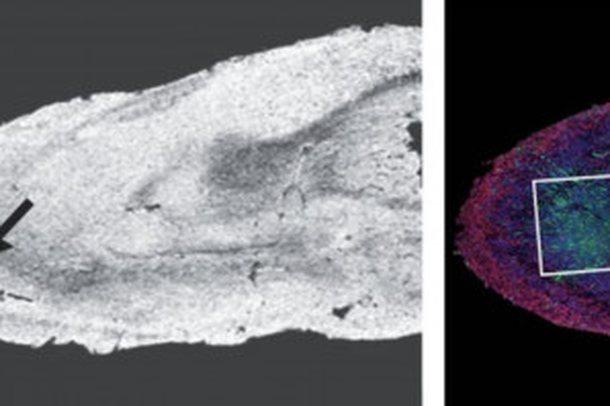 Dëmtimet që i shkakton koronavirusi trurit, çfarë u zbulua
