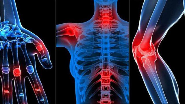 Artriti dhe artralgia/ Sëmundjet që dëmtojnë kyçet