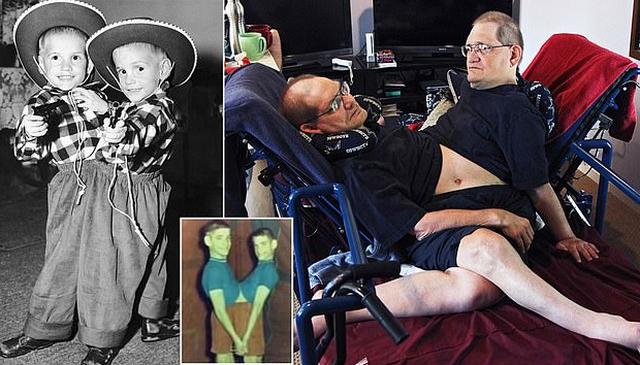 Të ngjitur që në lindje, vdesin binjakët më të