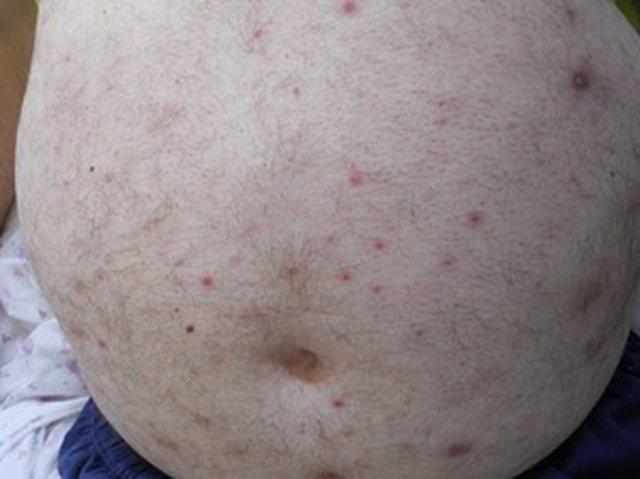 Jo vetëm COVID/ Mjeku Kalo nxjerr fotot dhe tregon sëmundjet e tjera