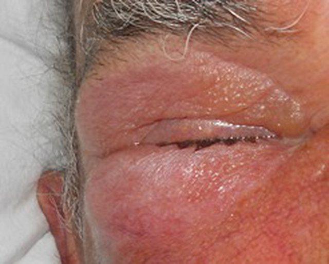 Mjeku Kalo nxjerr fotot dhe tregon infeksionet që po rrezikojnë