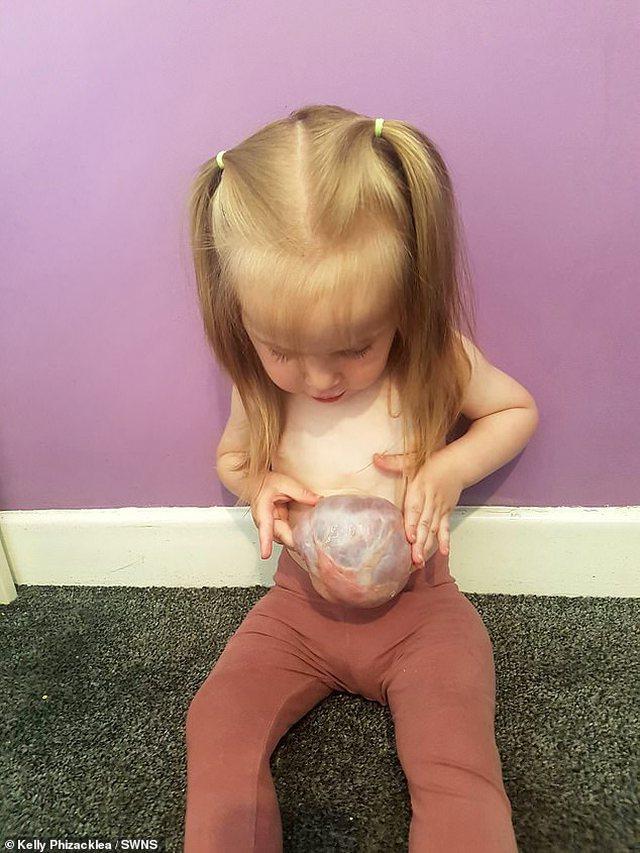Ndodh mrekullia/ Vajza 2-vjeçe i mbijeton operacionit dhe jeton me