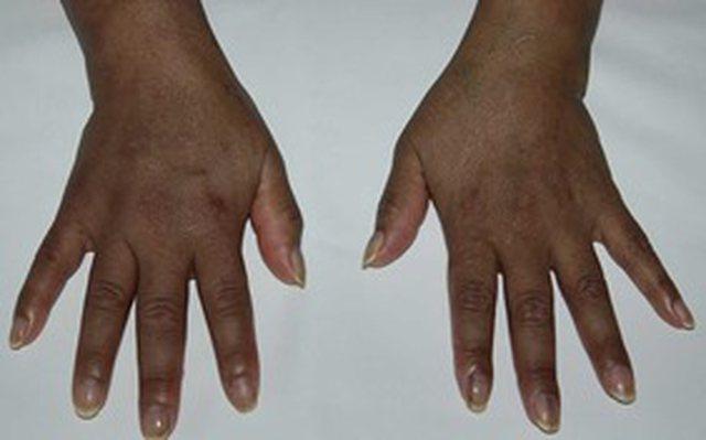 A lidhet hiperpigmentimi i lëkurës me koronavirusin? Tritan Kalo jep
