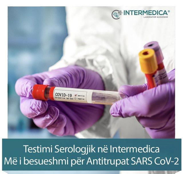 Testet serologjike dhe tamponi, në Intermedica gjeni standardet më