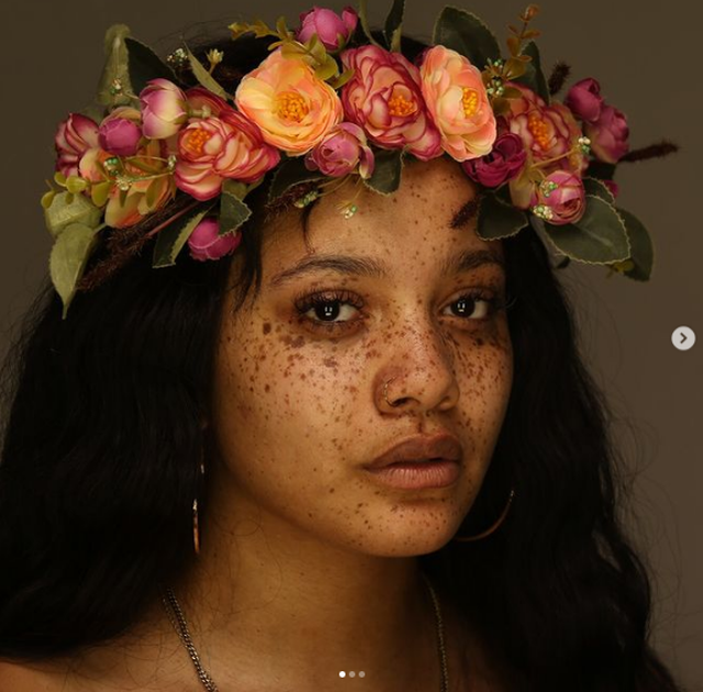FOTO/ Modelet që vërtetojnë se nuk ka më standarde bukurie