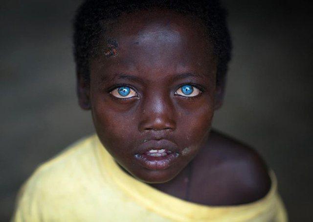 FOTO/ 10 njerëz me pamje të pazakontë, por mahnitëse