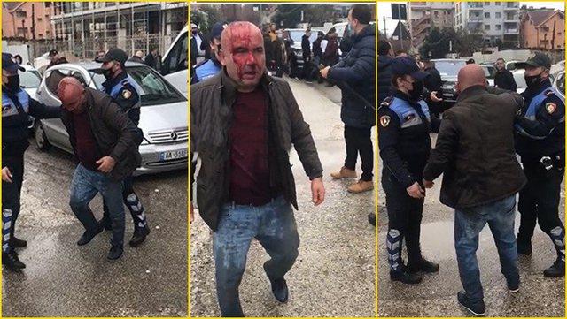 Sherri me të plagosur në Tiranë, mes të arrestuarve edhe dy