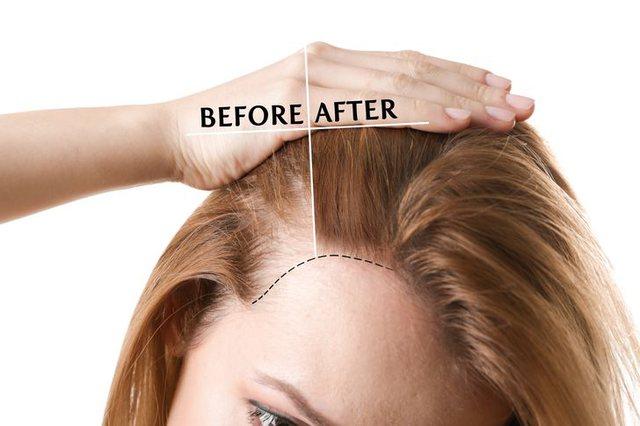 Nga rënia e flokëve deri te kockat më të forta, ja