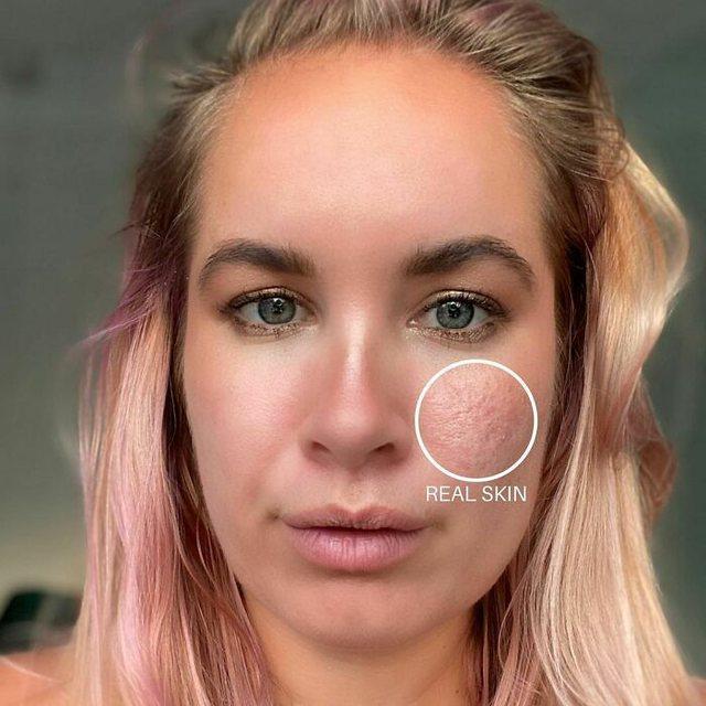 Pa asnjë filtër, vajzat tregojnë në rrjetet sociale