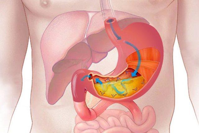 Një simptomë e shëndetit të keq të stomakut/ Kujdesi