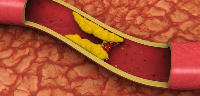 Njihuni me 8 mënyra natyrale për të ulur yndyrnat në gjak