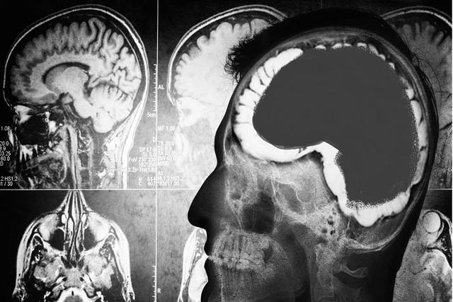 Suplementet për një tru më të shëndetshëm