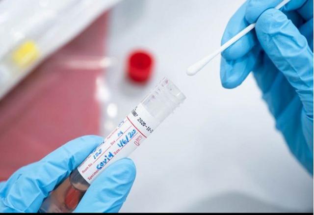 Noval Diagnostic: Tani përgjigja e testit PCR për vetëm 1
