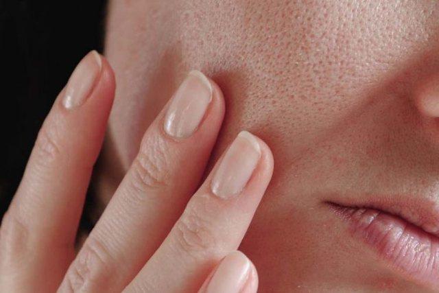 Çfarë e shkakton bllokimin e poreve?