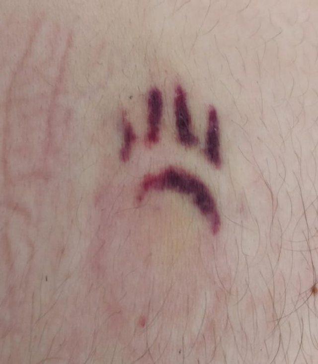 14 personat që shenjat në trup i kthyen në art (FOTO)