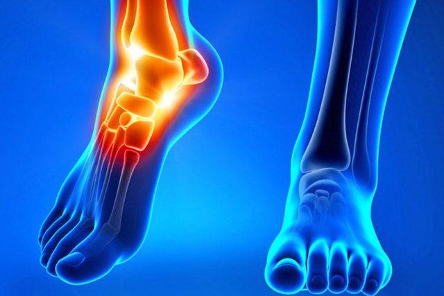 Ndikimi i Reumatizmës te kyçet e këmbëve/ Kurat natyrale