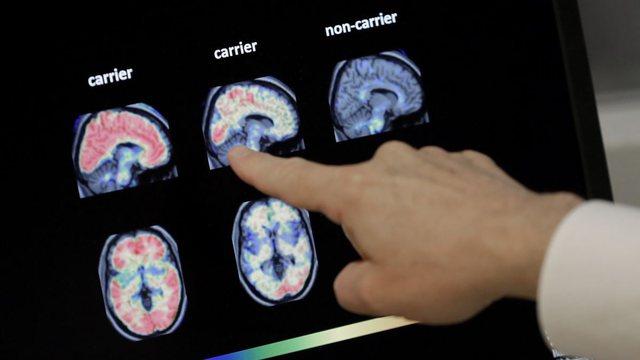 Sëmundja e Alzheimerit mund të zbulohet përmes një analize