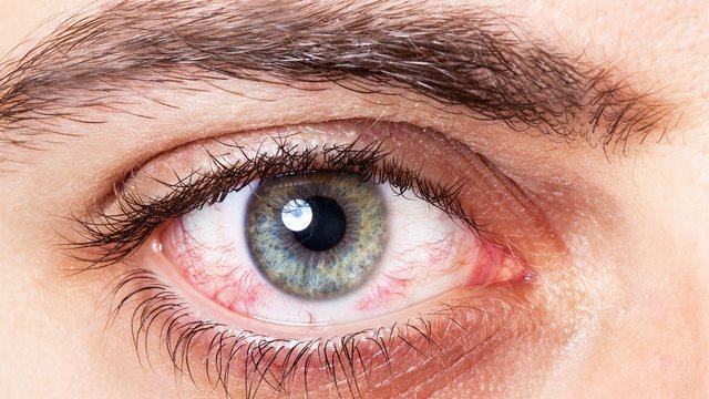 Ngjyra dhe forma e syve, lidhja me shëndetin