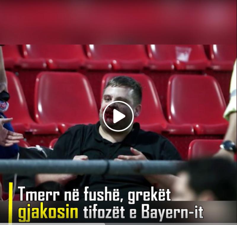 Tmerr në fushë, grekët gjakosin tifozët e Bayern-it
