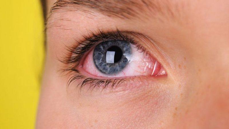 A mund të infektohemi me COVID-19 përmes syve? Ja përgjigjet