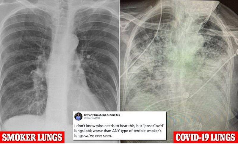Mjekja nxjerr fotot, COVID dërrmon mushkëritë më shume se