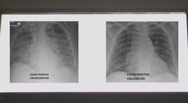 Efekti i vaksinës anti-COVID, mjeku amerikan publikon pamjet, dallimi i