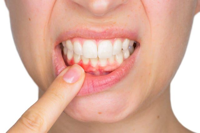 Save the toothache without going to the dentist