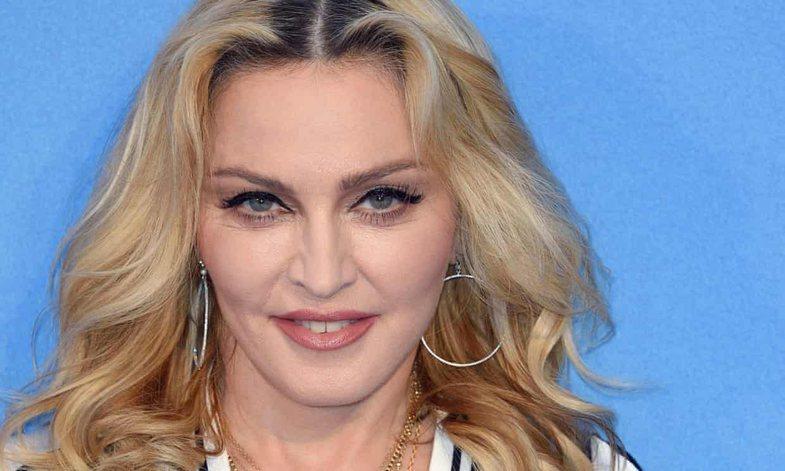 Nga Kate Moss te Madonna: VIP-at me dhëmbë të çrregullt
