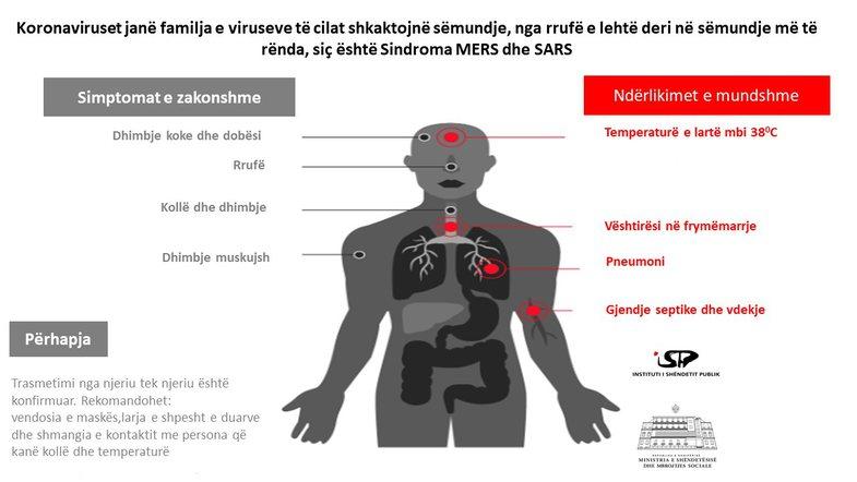 Si të mbrosh veten: Masat kryesore që parandalojnë koronavirusin