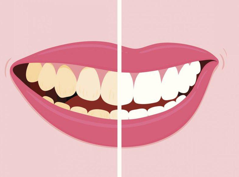 Gabimi që bëni çdo ditë po ju mban larg dhëmbëve