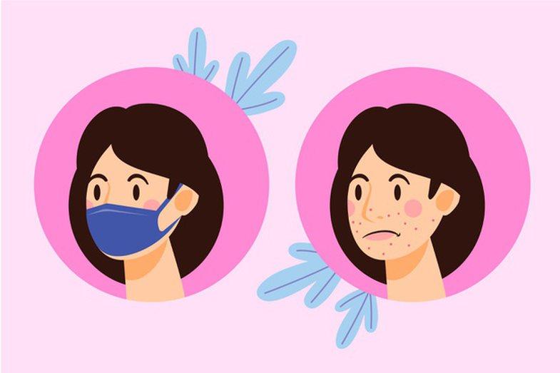 Maskne janë aknet e reja: Çfarë duhet të dini për to