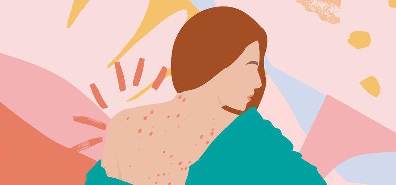 Aknet në shpinë: Çfarë i shkakton dhe cilat janë