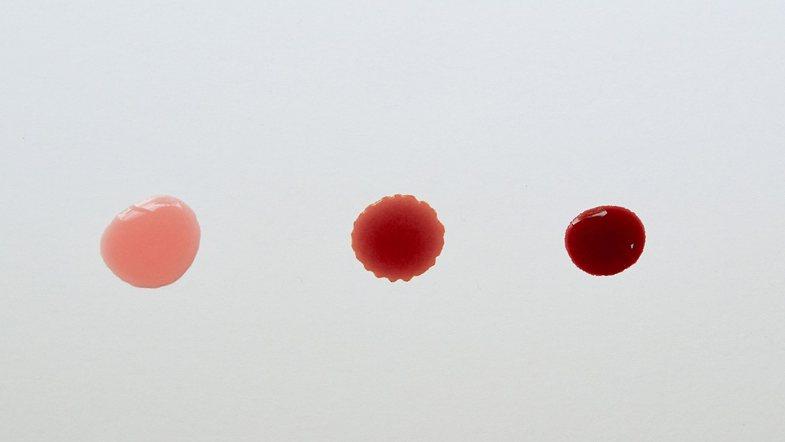 Nga infeksionet te kanceri: Gjakderdhja pas seksit – simptomat dhe shkaqet