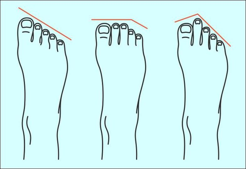 Si duhet t'i blejmë këpucët në varësi të