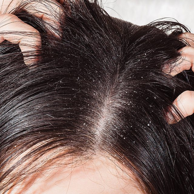 4 Natural Methods To Eliminate Dandruff From Your Hair