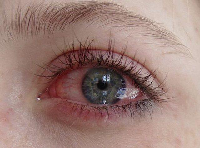 Arsyet përse ju lotojnë sytë shpesh, si të veproni në