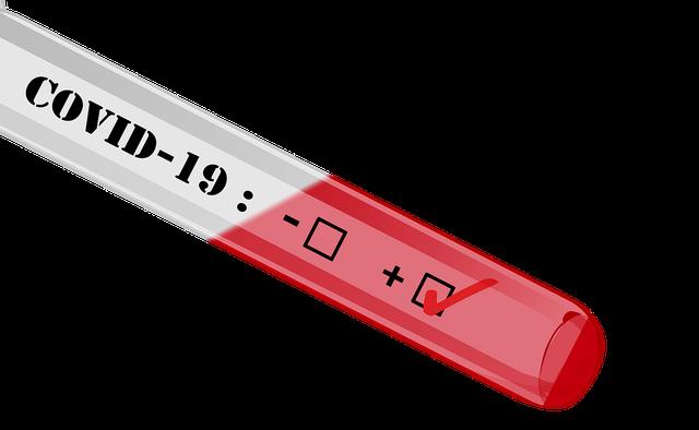 Në gusht QSUT mbylli laboratorin për testet e covid-19, Shqipëria