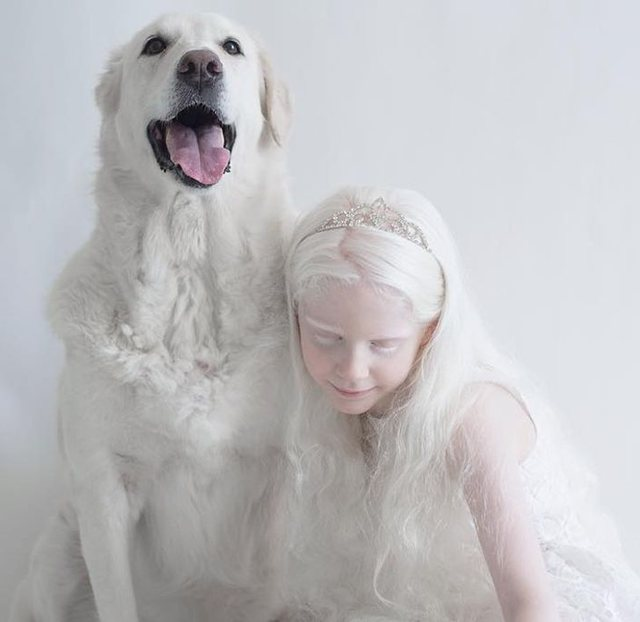 The stunning beauty of people with albinism through photos
