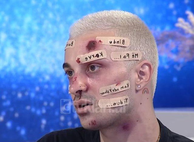 Make-up artisti Dario Doka: Ndjeja urrejtje pse jam mashkull, nena ime dhunohej