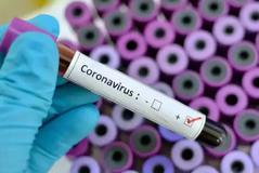 U infektua nga koronavirusi, këngëtari i njohur shqiptar tregon