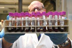 Krijohet testi i gjakut, një super biopsi likuide për të zbuluar