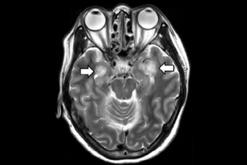 Studimi i fundit: Koronavirusi shkakton dëmtime neurologjike, te disa edhe