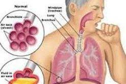 Sa ndikon vaksina e TBC në imunitetin antikoronavirus, a jemi ne