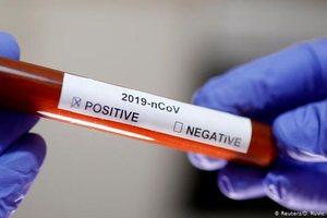 Plas skandali, Spitali Amerikan ofron teste për Covid-19 në shkelje