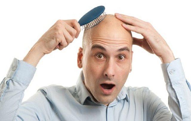 Tullac apo me flokë? Flet shkenca: Ja kush janë më të