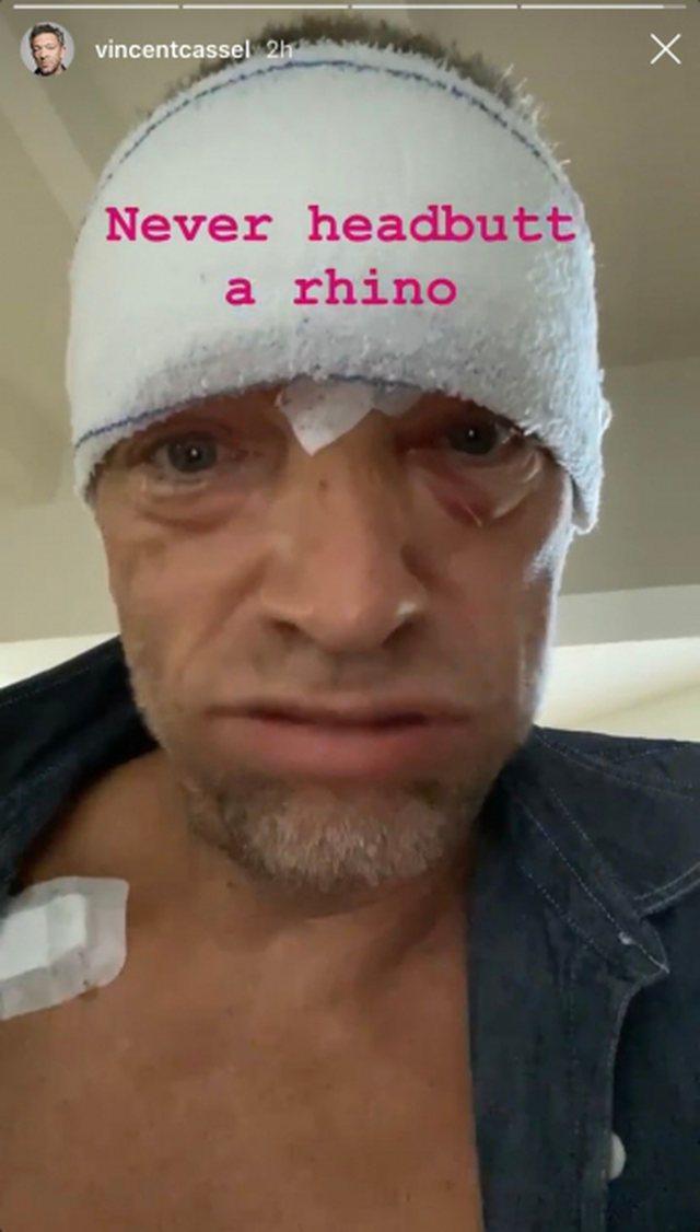 Aksident i frikshëm për aktorin e njohur, poston foto me fashë
