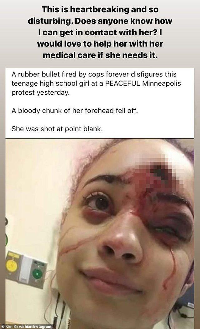 Pamje të rënda/ Protestuesja shpërfytyrohet në fytyrë