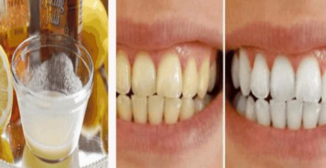 Receta magjike/ Ja si ti zbardhni dhëmbët për dy minuta