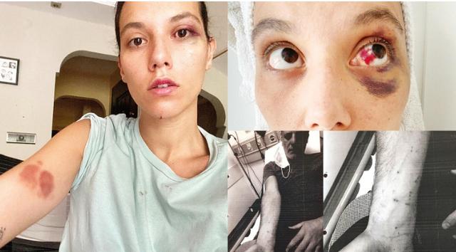Rrahu barbarisht të dashurën, gjykata merr vendimin për aktorin e